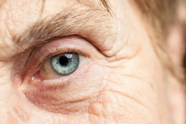 02 Cirurgia Anti-Glaucomatosa