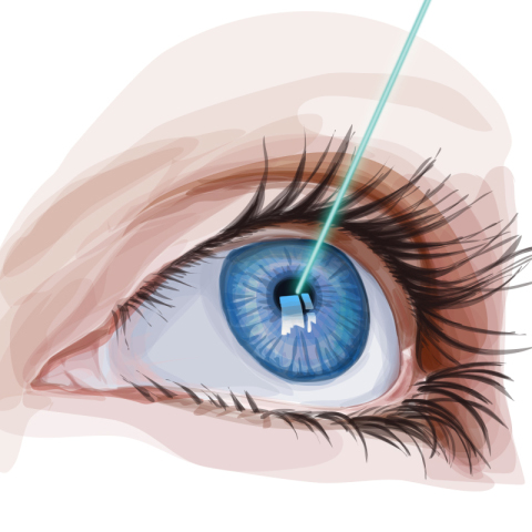 04 cirurgia laser olho