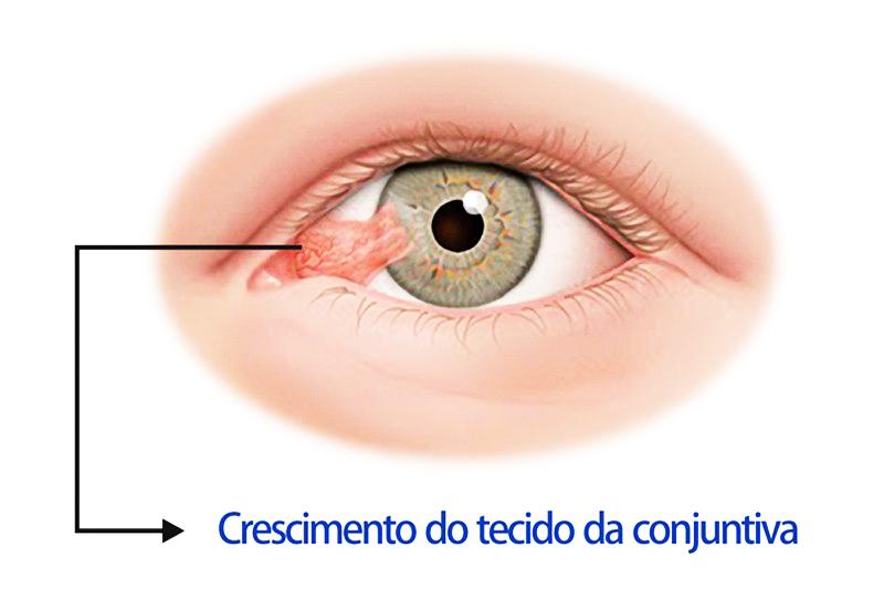 05 cirurgia pterígio