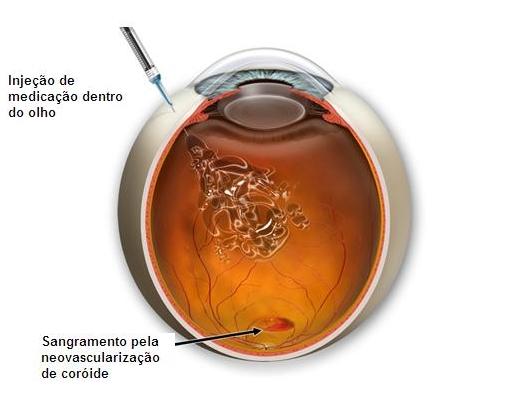 10 Injeção intraocular de antiangiogênico