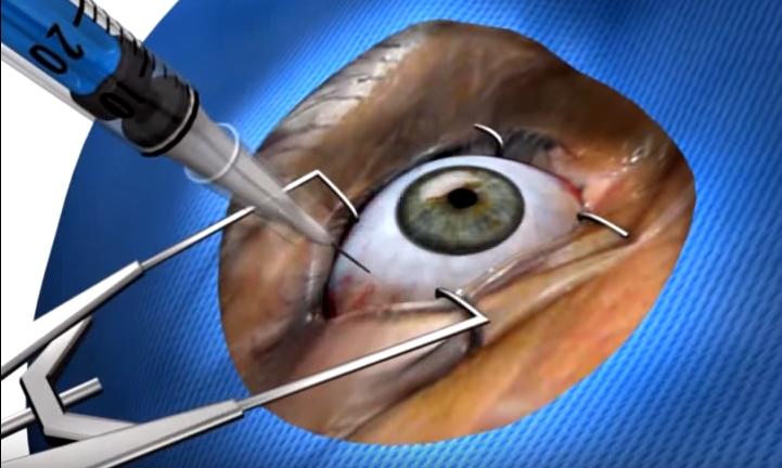11 Injeção intraocular de corticoide