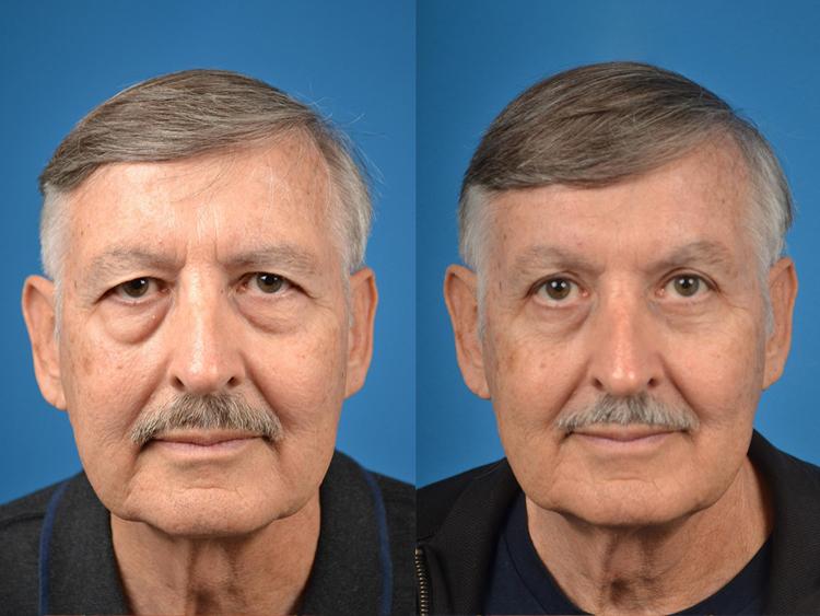 4 antes e depois