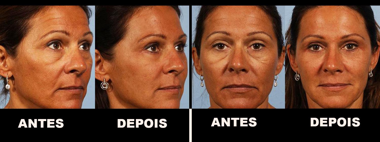 5 antes e depois